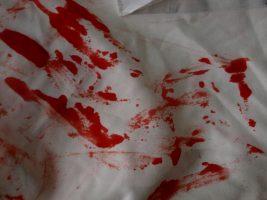 Cómo quitar las manchas de sangre