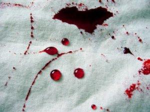 Quitar la mancha de sangre seca